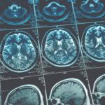 Royal College of Radiologists Imaging Informatics Industry Workshop